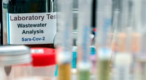 innovaciones microbiología generan oportunidades sector agua