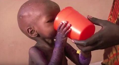 sequía y conflicto podrían obligar 4,7 millones niños dejar escuela África