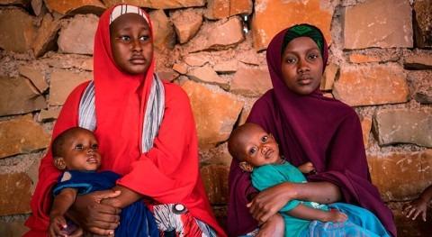 sequía, enfermedades y desplazamiento aumentan desnutrición infantil Somalia