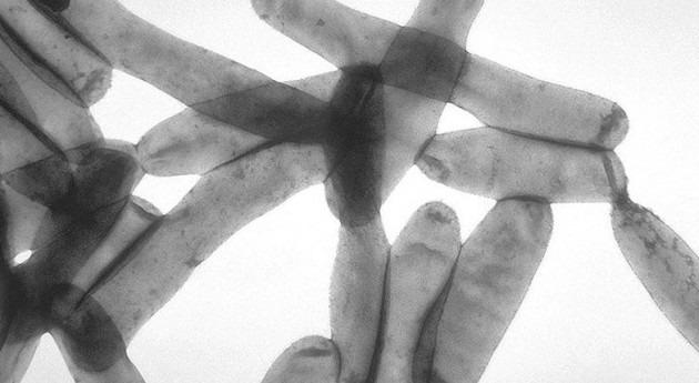 Legionella wikipedia