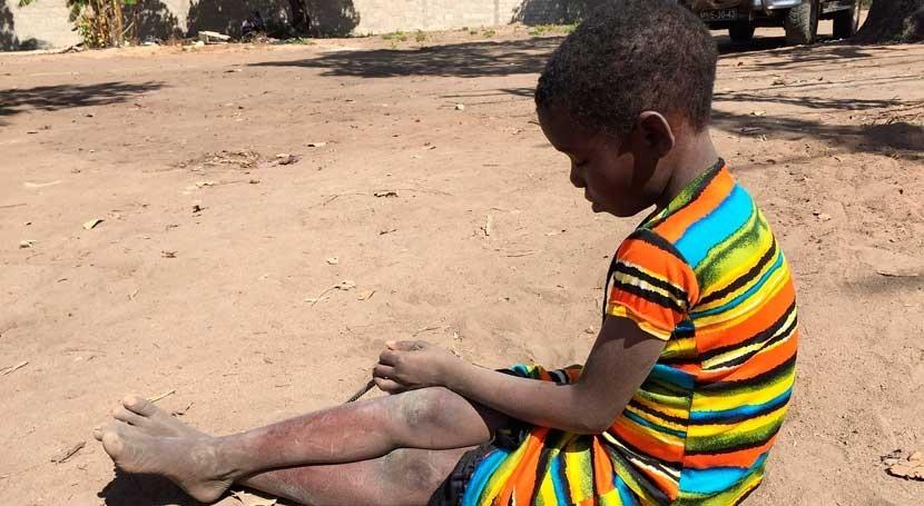 inacción sur África podría generar 49 millones afectados sequía